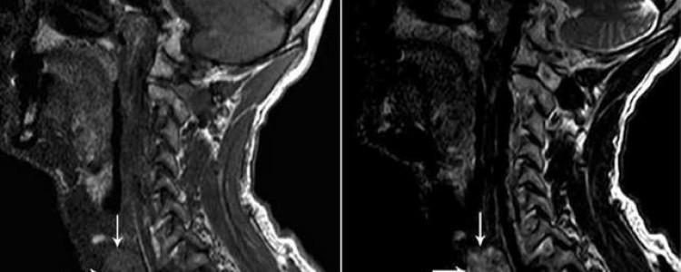Описание магнитно-резонансной томографии щитовидки