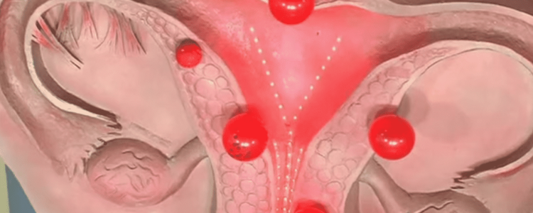 Беременность при эндометриозе, возможно ли забеременеть ?