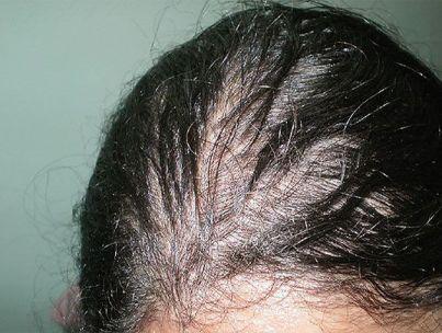 Выпадение волос при щитовидке — что делать?