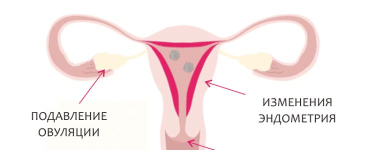 Механизм действия гормональной контрацепции