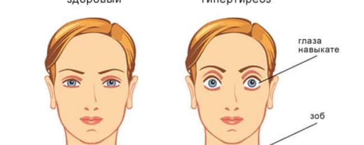 Эутиреоз щитовидной железы: что это, симптомы и лечение