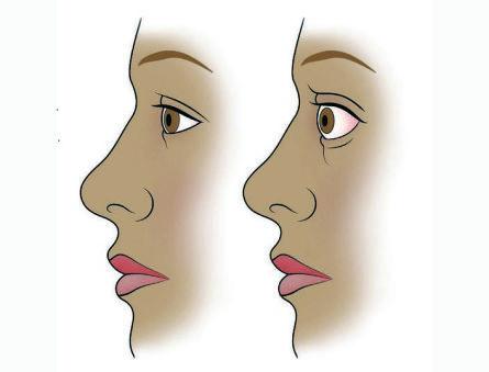 Что такое Базедова болезнь: причины симптомы и лечение