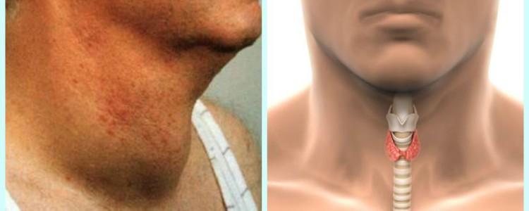Щитовидка у мужчин: симптомы проблем, признаки и лечение