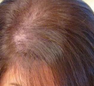 Почему выпадают волосы при гипотиреозе