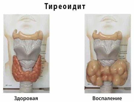 Способы лечения тиреоидита щитовидной железы