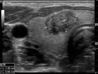 Кальцинат щитовидной железы что это такое?