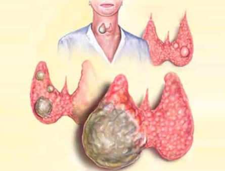 Виды и характеристика заболеваний щитовидной железы