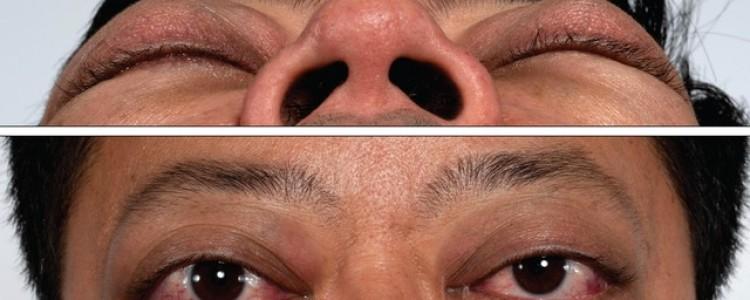 Как облегчить глазные симптомы при тиреотоксикозе