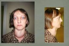Тиреотоксикоз у женщин: 12 основных симптомов