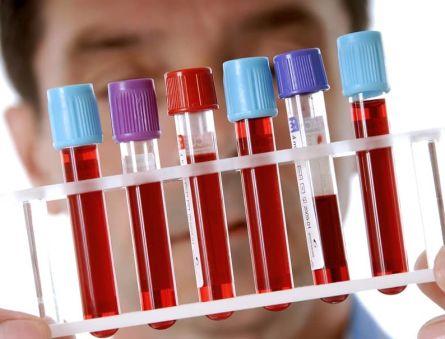 Какие анализы сдают на рак щитовидной железы?
