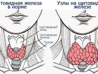 Насколько опасен узел в щитовидной железе