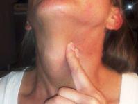 Ком в горле и патологии щитовидной железы