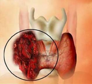 Профилактика и диета при раке щитовидной железы