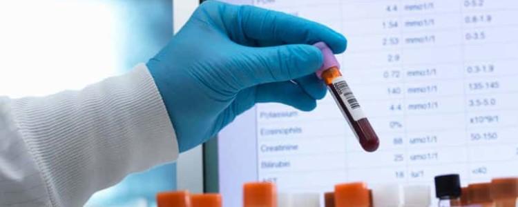 17-ОН прогестерон повышен: причины и лечение