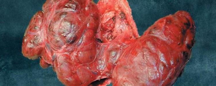Симптомы и лечение тиреоидита Риделя