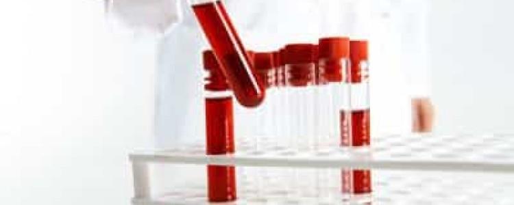 Дексаметазоновая проба: что означает положительная, отрицательная, норма, интерпретация результата реакции на кортизол, малая и большая