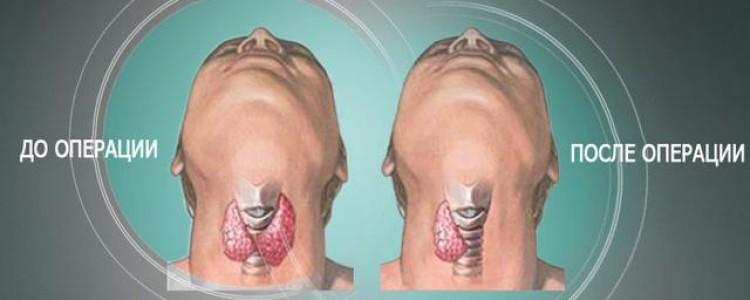 Подготовка и проведение удаления щитовидки лазером