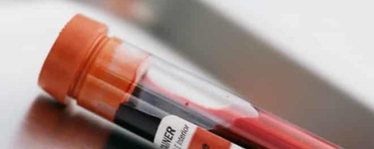 Анализ крови на ПТГ: что это такое, нормы паратгормона у женщин, как правильно сдавать