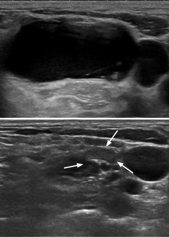 Этаноловая склеротерапия узлов