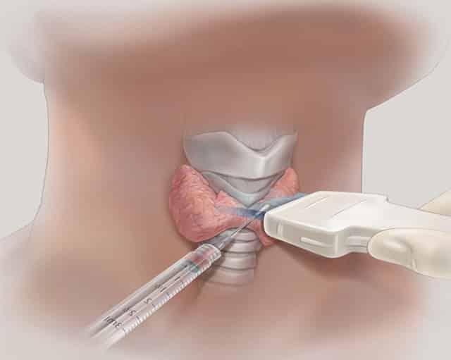 Метод склеротерапии фото