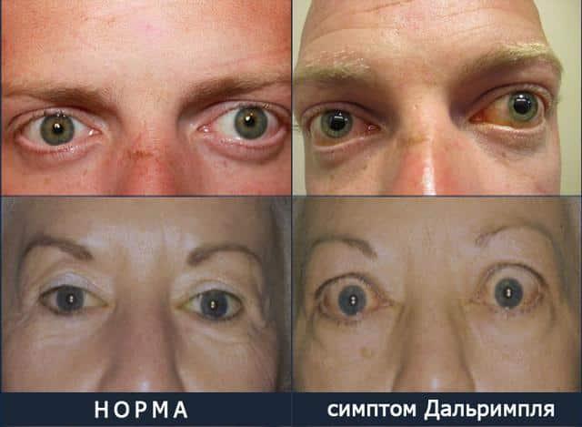 Базедова болезнь симптом Дальримпля
