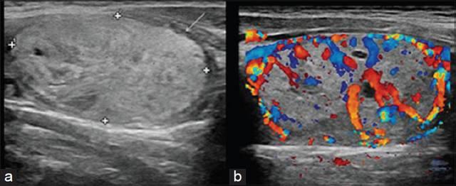 Допплерография щитовидной железы