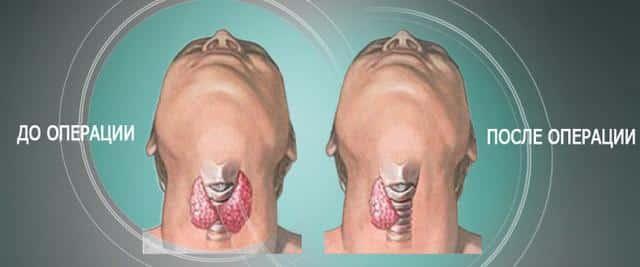 Виды операций на щитовидной железе