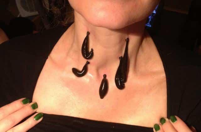 Лечение щитовидной железы пиявками