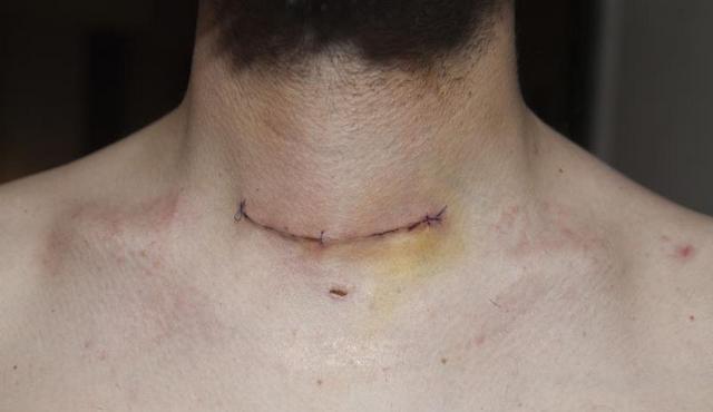 Лечение после тиреоидэктомии