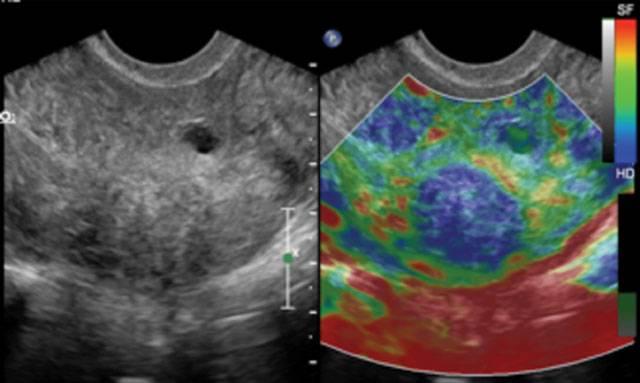 Соноэластография щитовидной железы