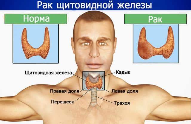 Гормоны при раке щитовидной железы