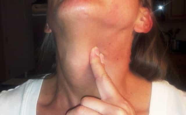 Щитовидка признаки ком в горле
