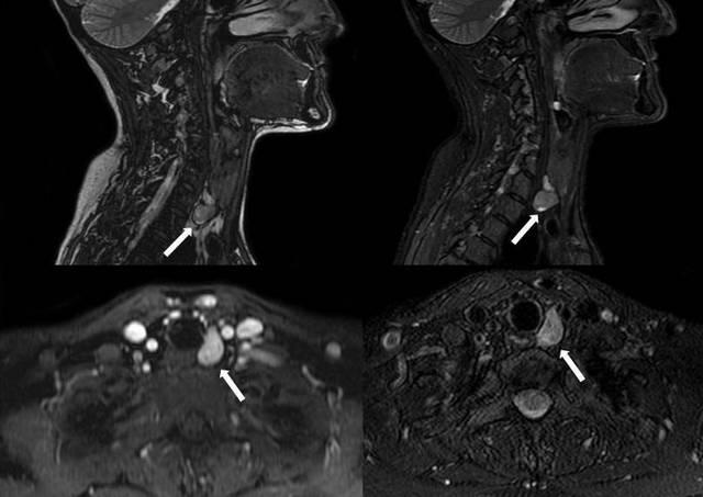 Снимки МРТ паращитовидных желез