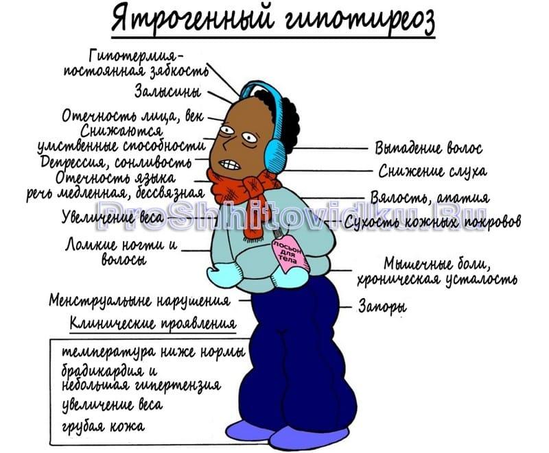 Ятрогенный гипотиреоз