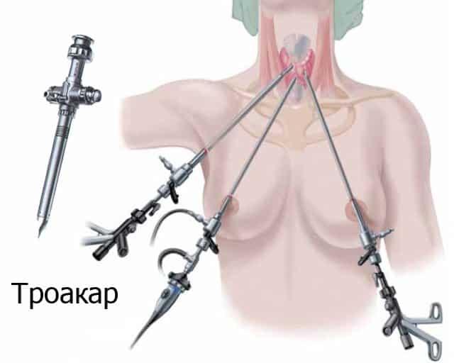 Современные методы лечения щитовидной железы