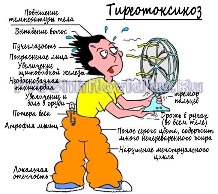 Гипертиреоз причины симптомы и лечение осложнения  Мед