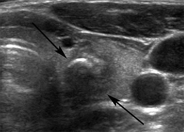Как лечить гипоэхогенное образование щитовидной железы