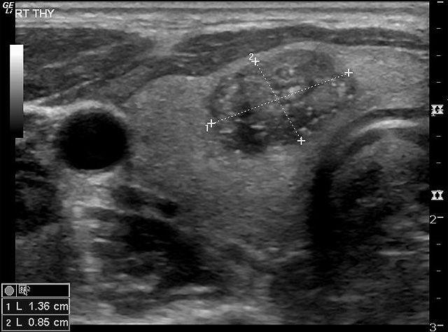 Кальцинаты в узле щитовидной железы