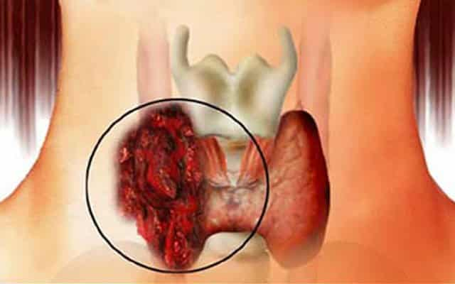 Профилактика рака щитовидной железы