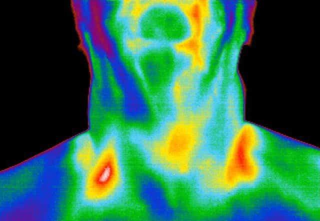 Термография щитовидной железы