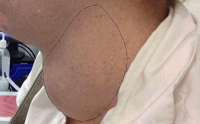 Операция по удалению узлового зоба