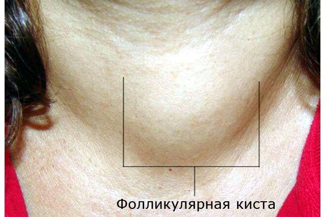 эко слим цена в аптеках украины