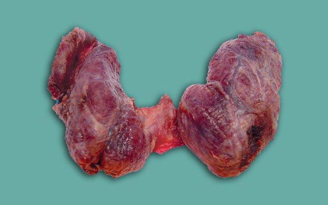 Симптомы коллоидного зоба