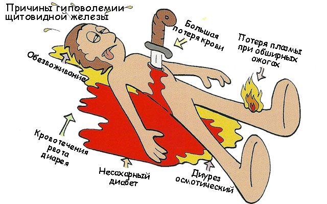 Причины гиповолемии щитовидной железы