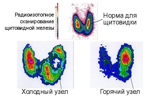 Горячие и холодный узлы щитовидной железы