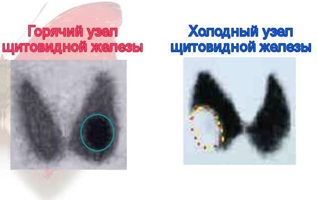 Отличия узлов при радиоизотопном сканировании щитовидной железы
