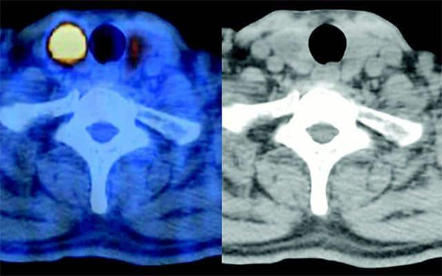 Диагностика фокальных изменений щитовидки
