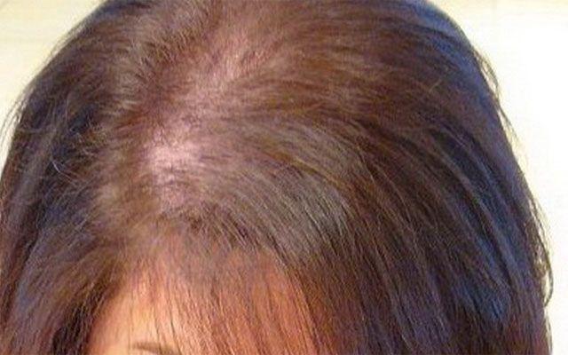 Гипотиреоз и выпадение волос