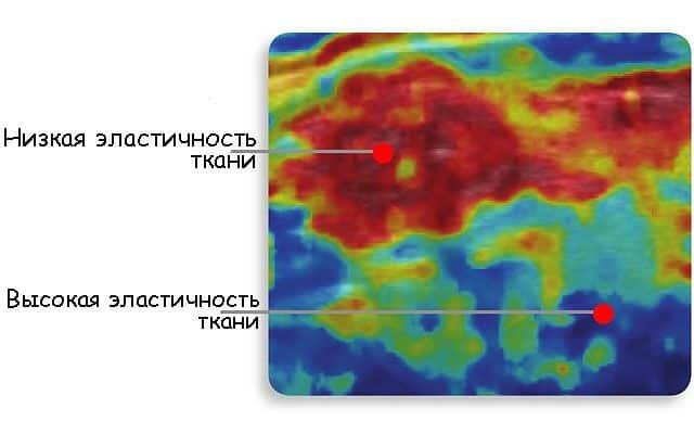 Шкала эластичности при эластографии