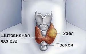 Тиреоидит щитовидной железы с узлообразованием